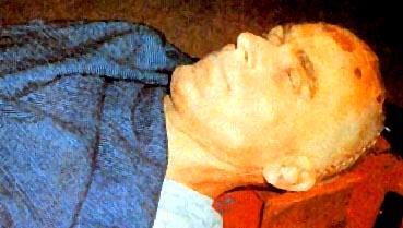 Тялото на Тед Бънди след екзекуцията на електрическия стол
