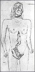 Скица на нараняванията