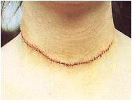 Раната на шията на Алисън