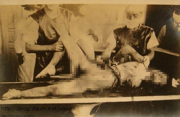 Дисекция на живи хора в Отряд 731