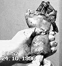 Отрязана ръка, открита в дома на Спесивцев