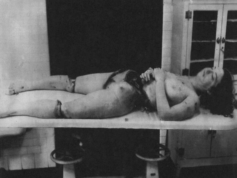 Разчлененото тяло на Сами